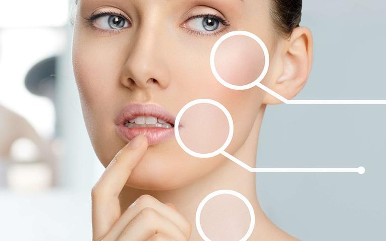 cbd acné